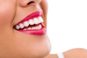 Keep Your Smile Sparkling Clean with a One-Hour Professional Teeth Whitening Session at D and H Beauty Bar! Valid for Ages 18 and Over. Auburn Salon